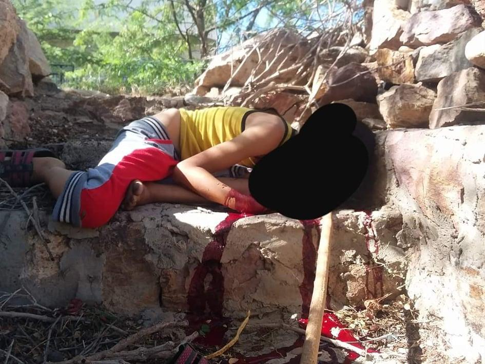 تعز.. مقتل طفل وإصابة آخر برصاص قناص حوثي غداة مجزرة السجن #65279; #65279;