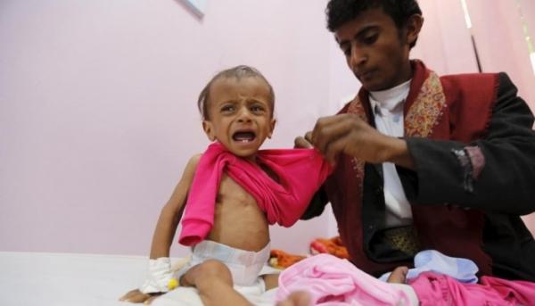 تحذيرات أممية من مجاعة جديدة في اليمن