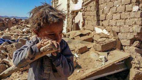 الأمم المتحدة: الحرب أعادت اليمن عشرين عاماً للوراء وخلفت ربع مليون قتيل
