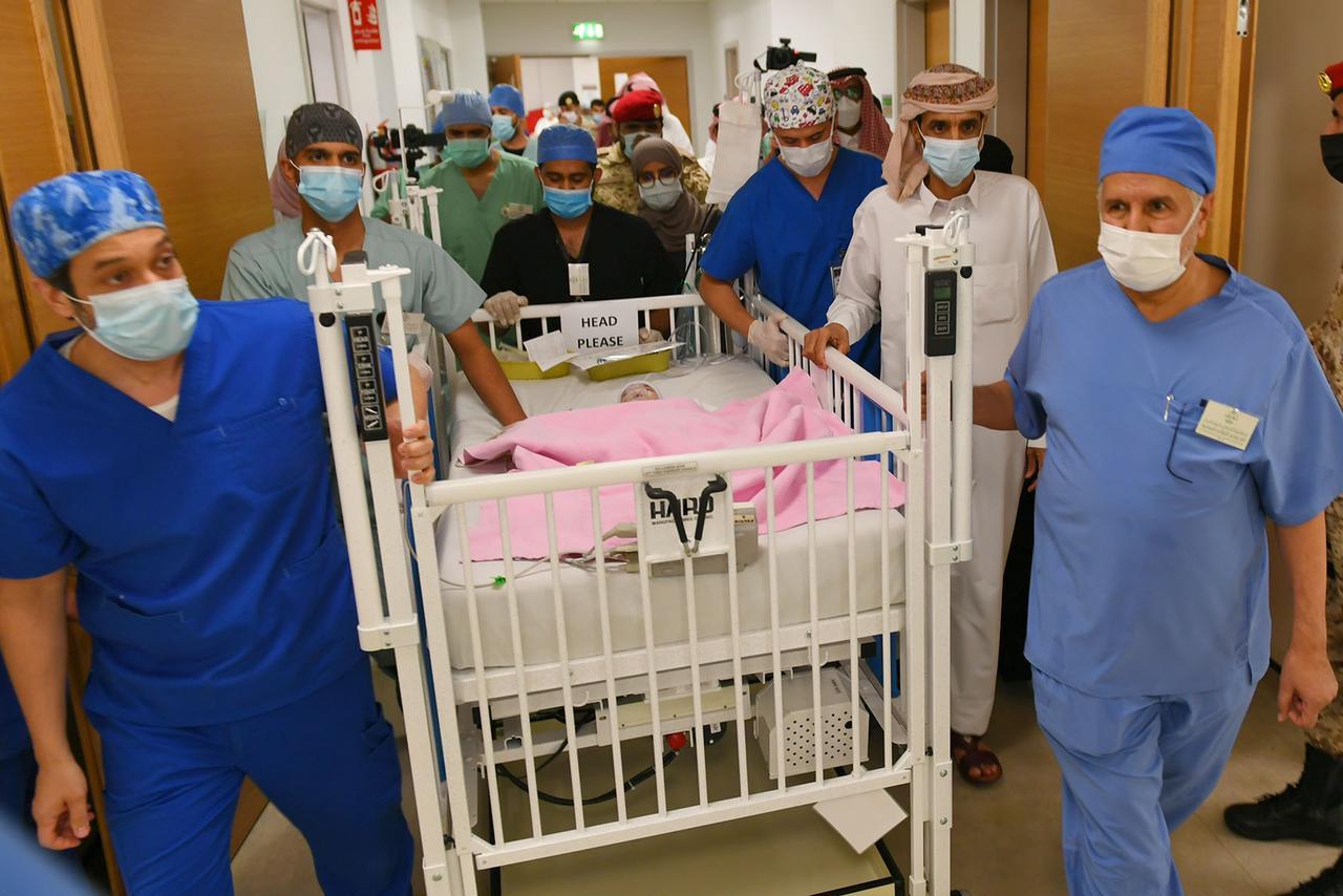السعودية تعلن نجاح عملية فصل التوأم الطفيلي اليمني